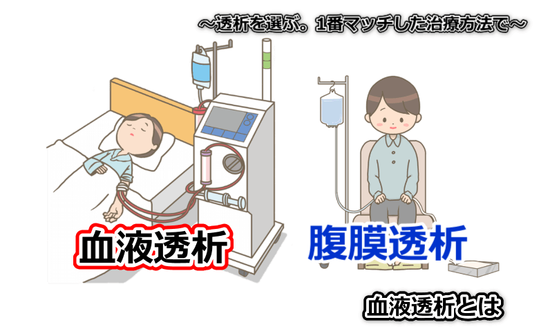 透析を選ぶ、血液透析か腹膜透析か