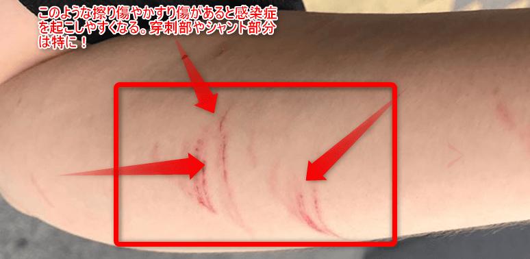 穿刺部、シャント部分の切り傷
