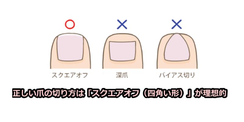 正しい爪の切り方は「スクエアオフ(四角い形)」が理想的