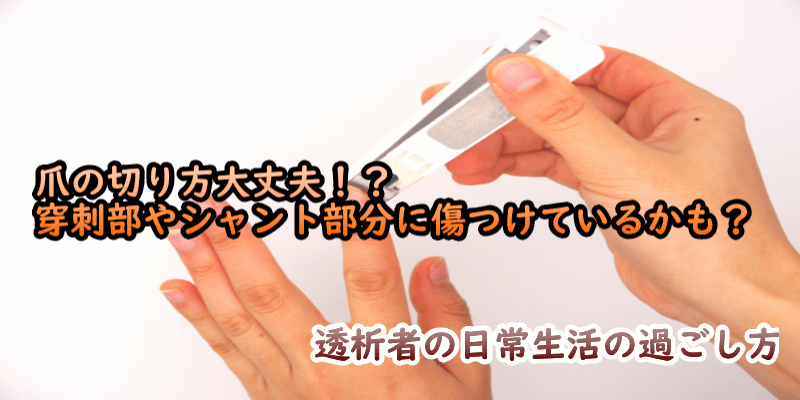 TOP:爪の切り方大丈夫!? 穿刺部やシャント部分に傷つけているかも?